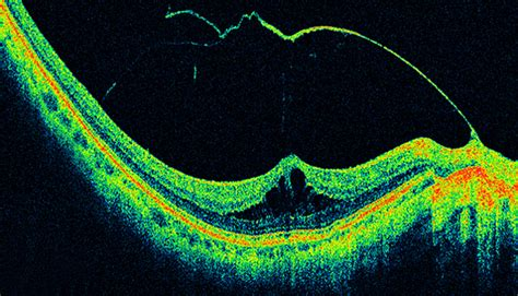 Retinal OCT Imaging - Ophthalmic Photographers' Society