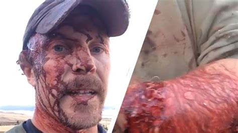 Guy Films The Horrific Aftermath Of Surviving A Grizzly